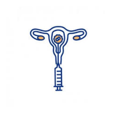 IVF Cost
